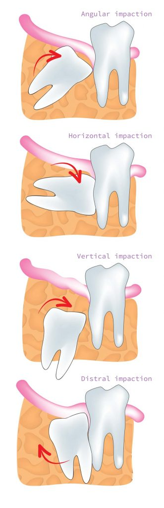 How Much Is It To Get Wisdom Teeth Out Uk - TeethWalls